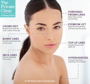 Anti-Wrinkle injections treatment areas
