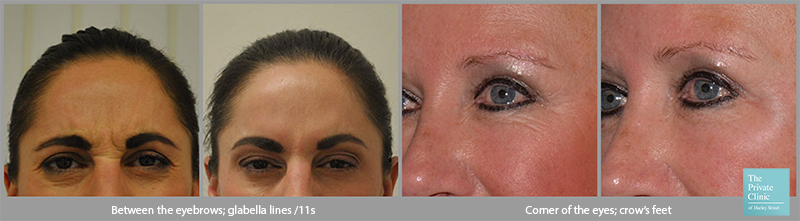 botox wrinkle injections forehead crows feet before after photos