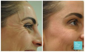 Anti Wrinkle Injections for crows feet, lines around the eyes