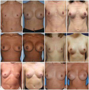 breast augmentation Before and After Photos private clinic