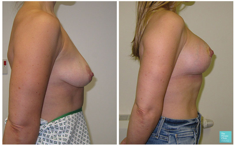 Breast Augmentation with Implants and Uplift before after photo