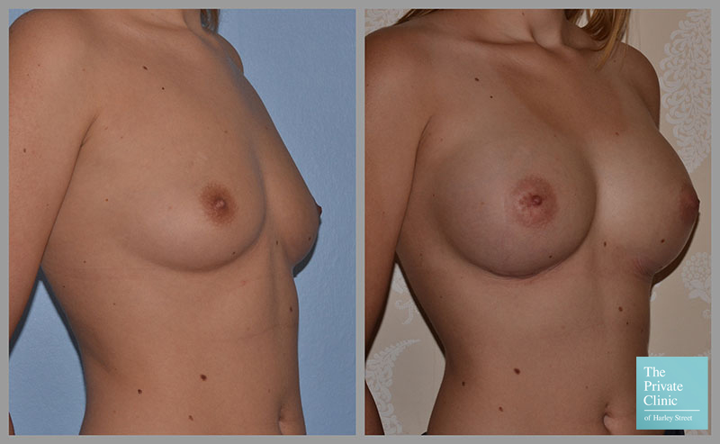 breast augmentation uk before after photo