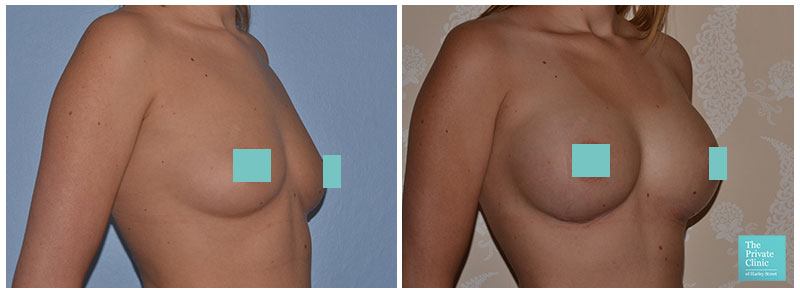 breast implants uk before after photo