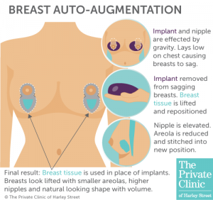what is breast enlargement auto augmentation surgery