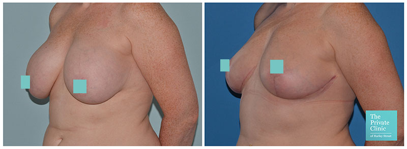 breast auto augmentation before after photo