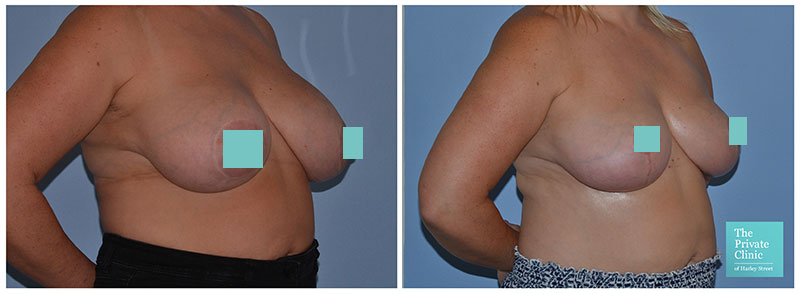 breast auto augmentation reconstruction surgery before and after photos