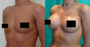 Before and after Breast Augmentation at The Private Clinic.