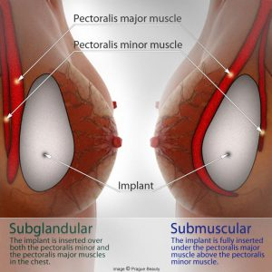 breast implants over under the muscle
