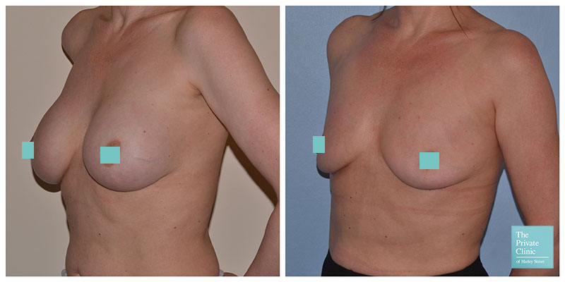 breast implant removal before after photo