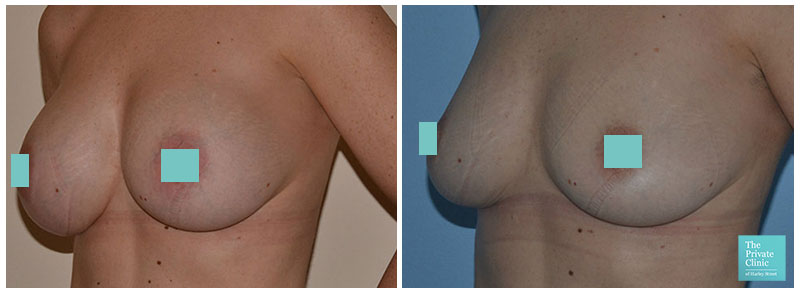 Breast Explant and breast lift before and after photo