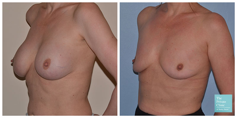 breast implant removal london before after photo