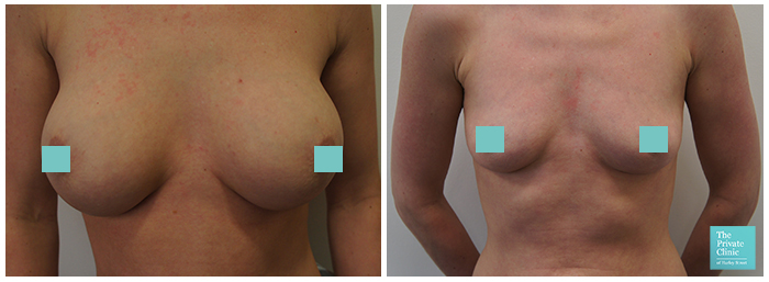 removal of breast implants before after photo