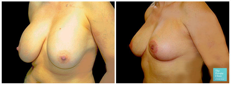 breast implant removal uplift auto augmentation before after photo