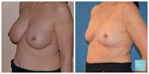 Breast implant removal and uplift before and after photo