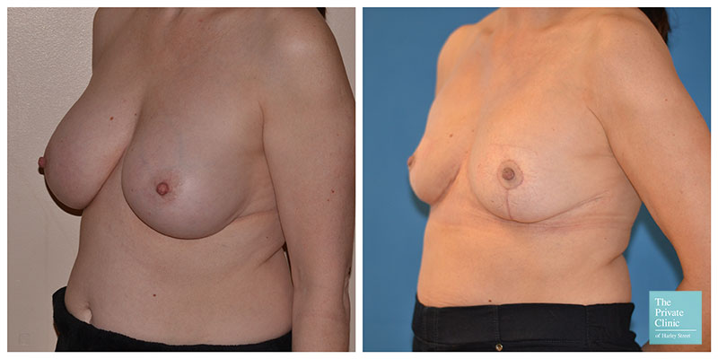 breast implant removal uplift before after photo