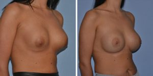 breast implant replacement and removal before after photo