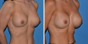 breast implants replacement removal london before after photo