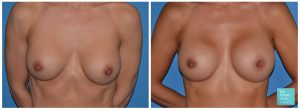 Breast Implant removal replacement UK before after photo