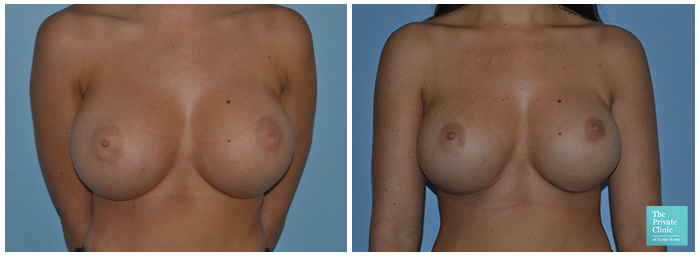 breast implant replacement near me before after photos