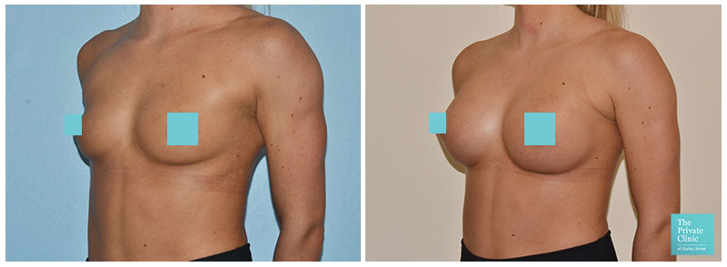 breast augmentation bucks before and after photos