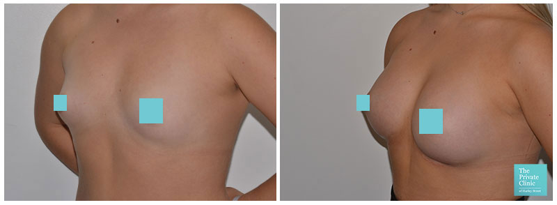 breast implants augmentation bucks before and after photos