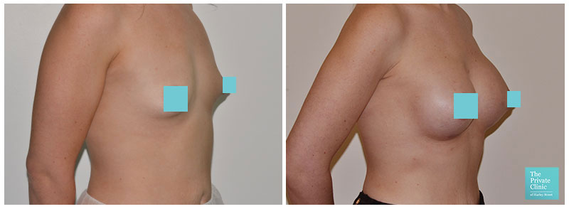 breast surgery for augmentation bucks before and after photos
