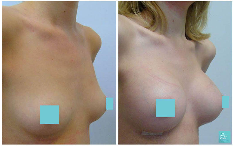 breast implants augmentation leeds before and after photos
