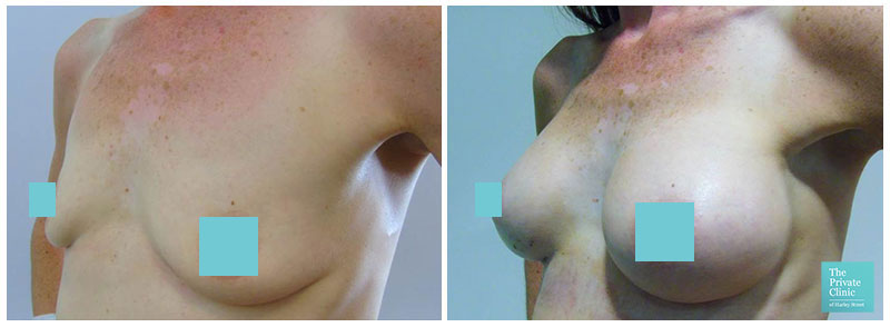 breast surgery for augmentation leeds before and after photos