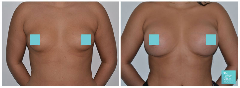 breast implants augmenation london before after photos
