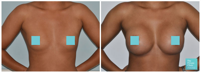 breast augmentation london before and after photos