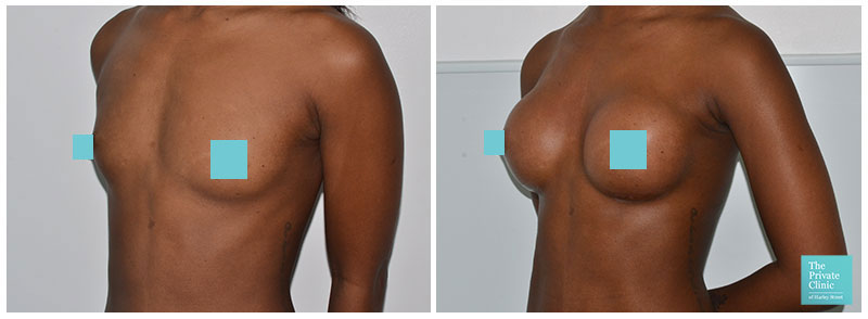 breast implants enlargement the private clinic before after photo