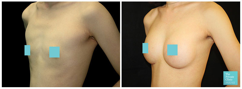breast enlargement before after photo