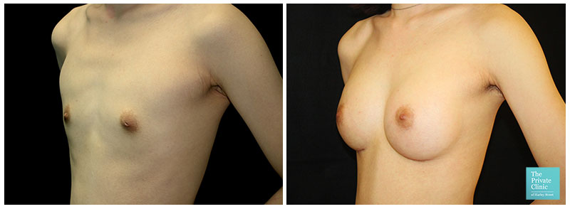 Breast implants augmentation before after photo