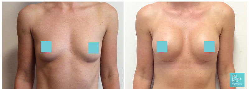 breast augmentation surgery before and after photo