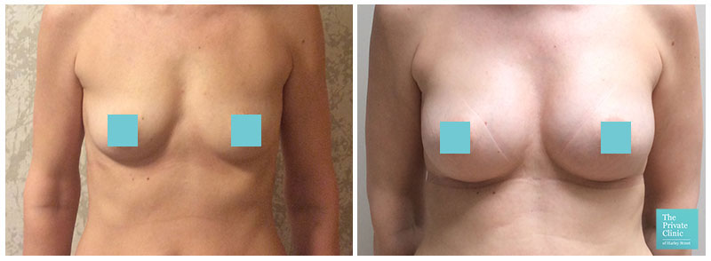 breast augmentation surgery london before after photos