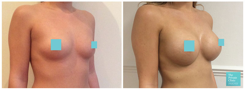 breast implants london harley street before after photos