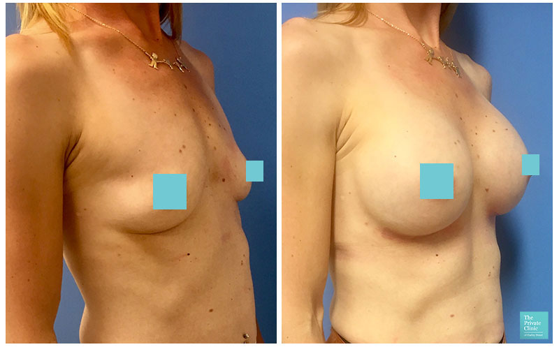 breast enlargement manchester before and after photos