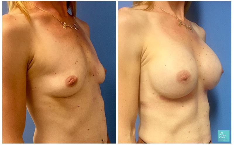 Breast Enlargement with Implant before after photo