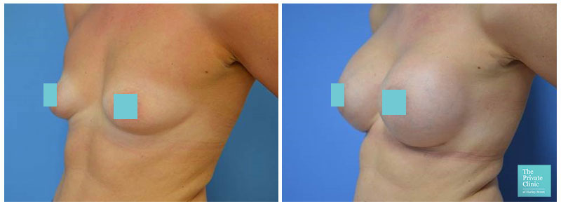 breast surgery for augmentation manchester before and after photos