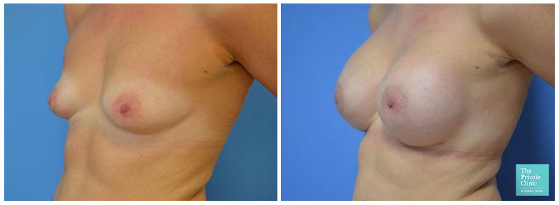 best breast augmentation procedure before after photo