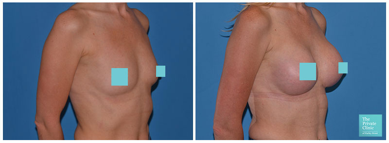 breast surgery for augmentation northampton before and after photos