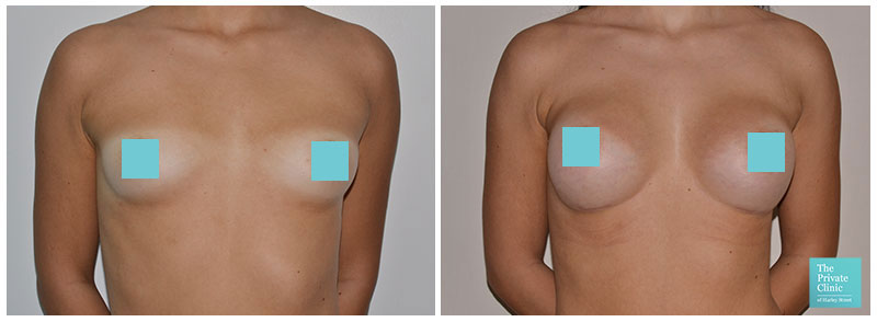 breast augmentation northampton before and after photos