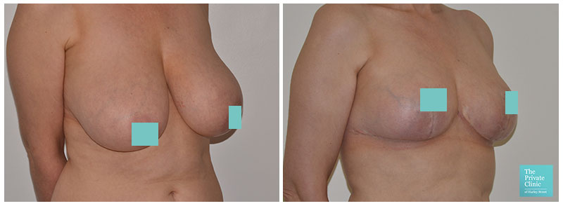breast reduction UK before and after photo