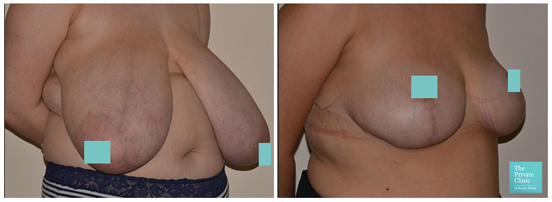 breast reduction surgery before and after photos result