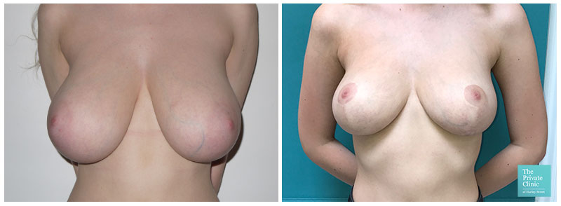 Breast Reduction uplift UK Before and After Photos
