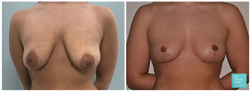 breast uplift mastopexy before after photo