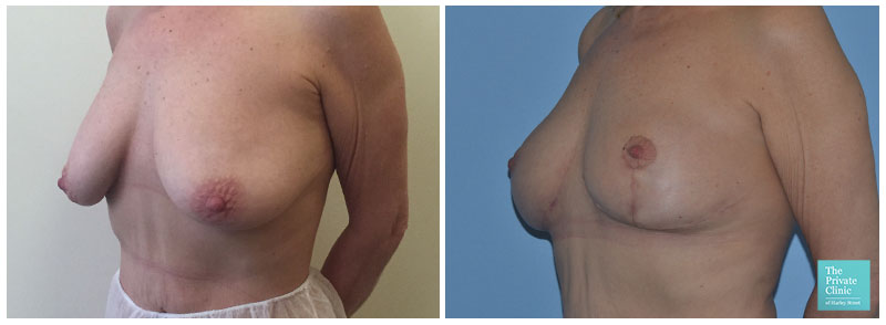 bbreast lift surgery mastopexy before and after photos