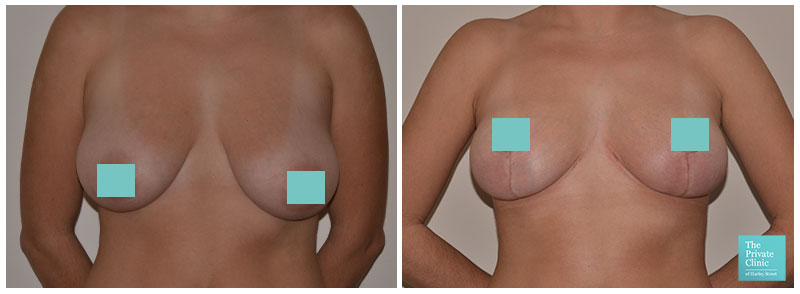 breast uplift UK before after photo
