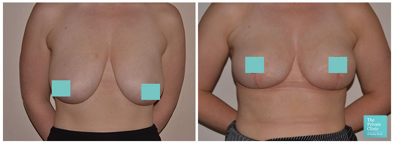 mastopexy breast lift before after photo