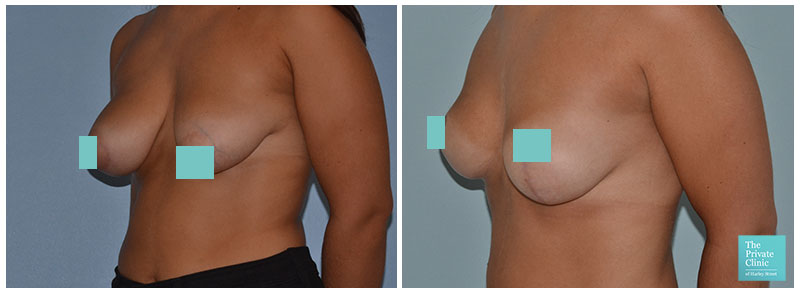 breast uplift surgeon before and after photos